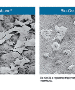 Osbone - Optimized Hydroxyapatite Osbone® By Curasan
