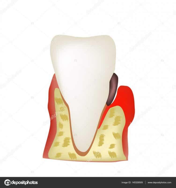 depositphotos 145326509 stock illustration periodontitis dental disease inflammation