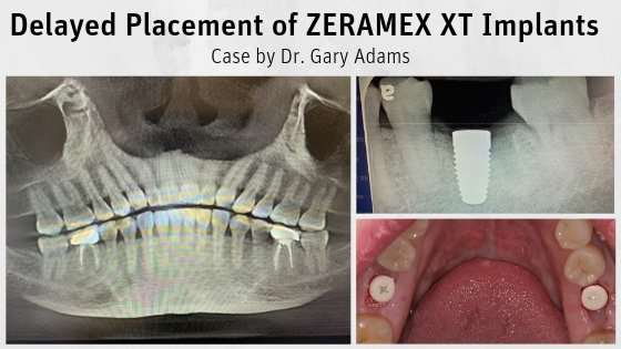 Delayed Placement of ZERAMEX XT Implants by Dr. Gary Adams
