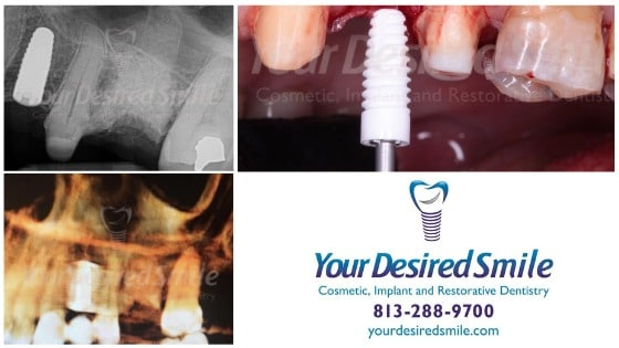 Guided Placement of ZERAMEX XT by Dr. Luis Alicea of Your Desired Smile