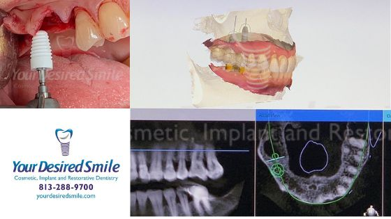 Posterior Zirconia Implants Guided Surgery