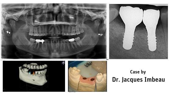 ZERAMEX® P6 Implant Placement