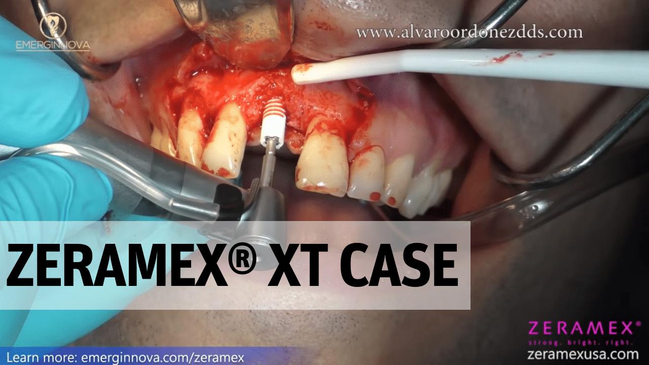 ZERAMEX XT Case
