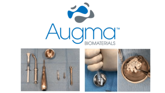 Augma Biomaterials Case