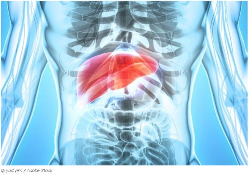 Liver cancer and oral health