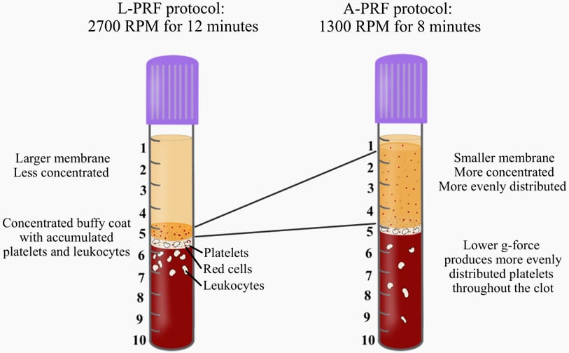 lprf protocol 1