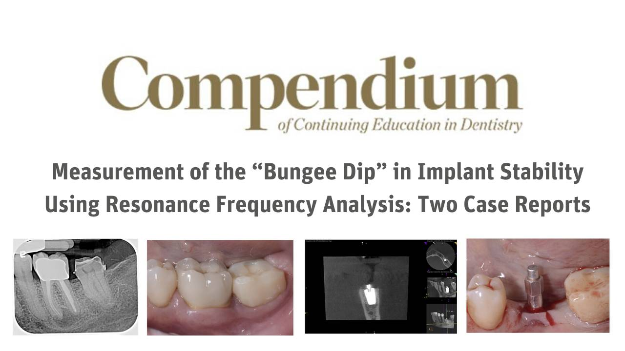"Measurement of the ""Bungee Dip"""