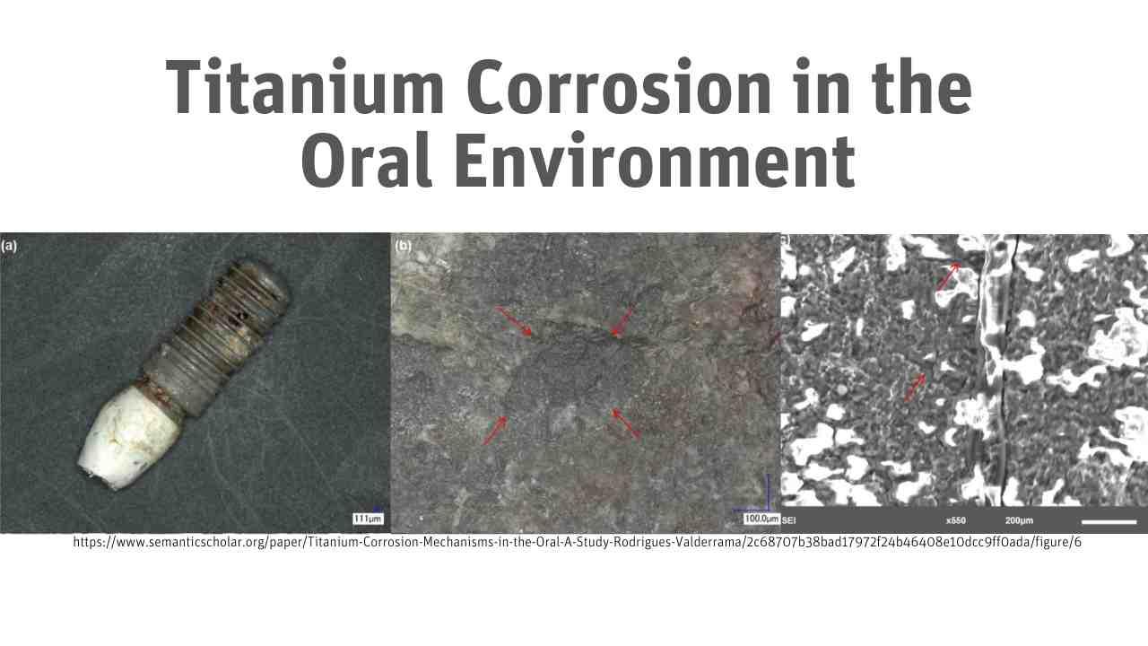 Titanium Corrosion in the Oral Environment