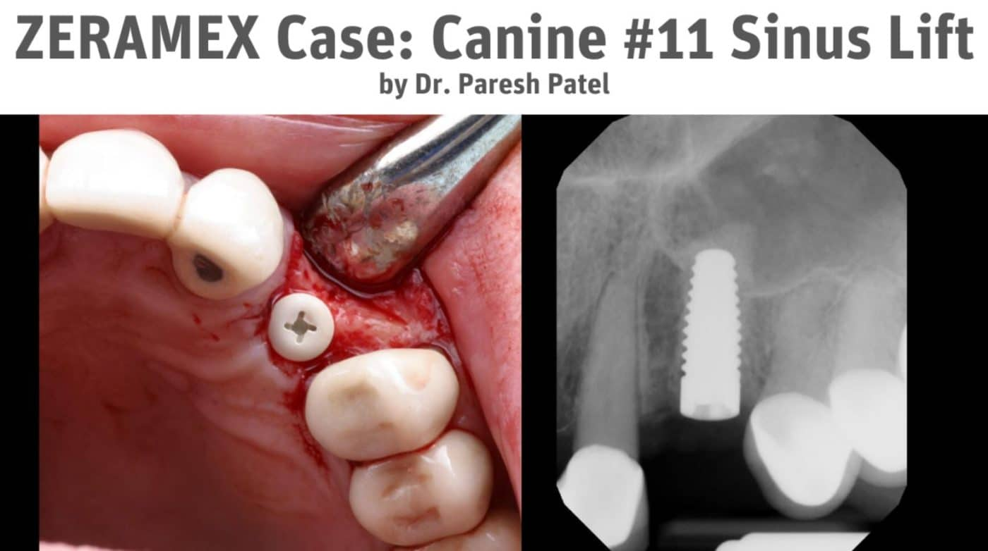 Dr. Paresh Patel First ZERAMEX Test Case