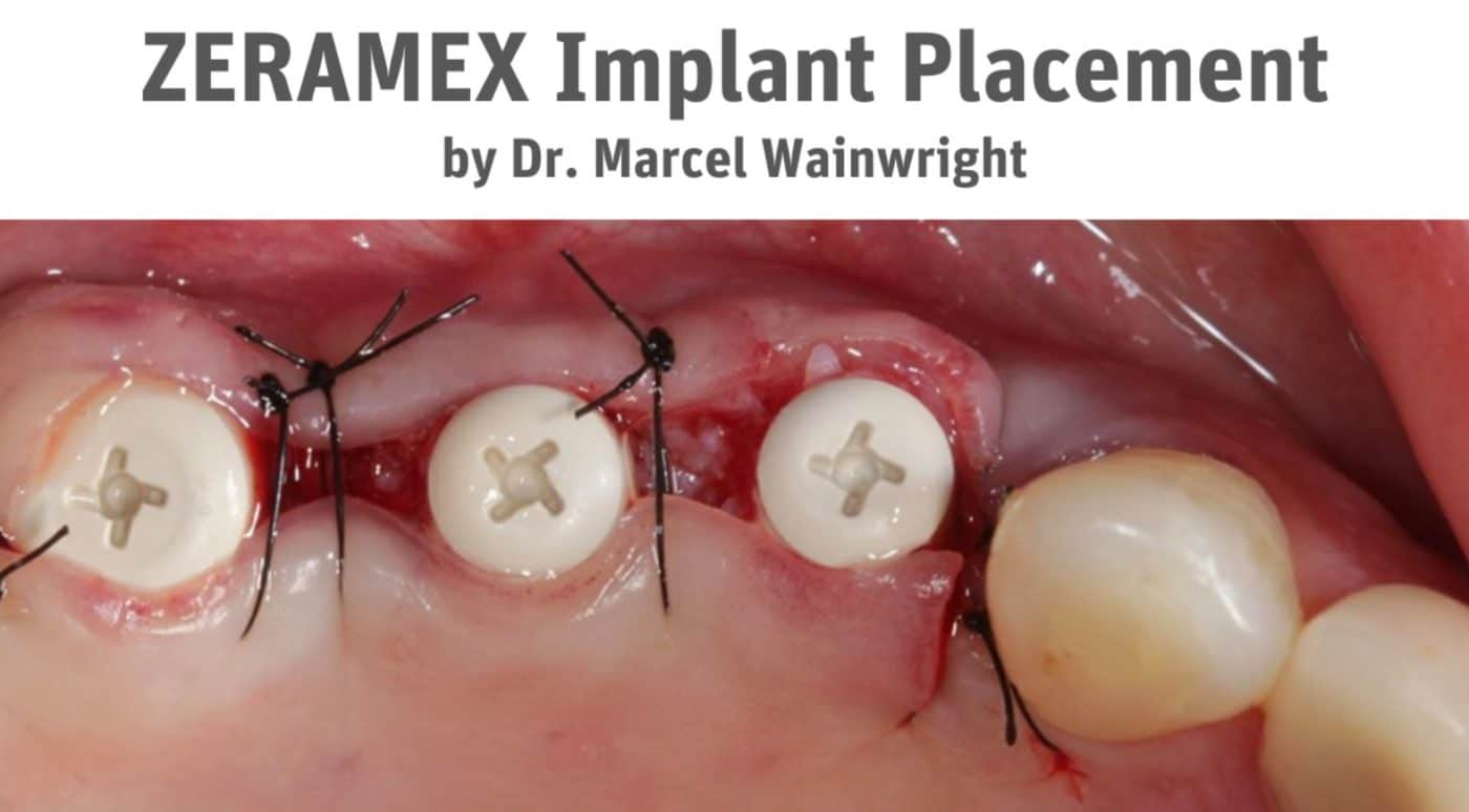 Marcel Wainwright Implant Case 1